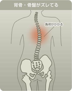 背骨・骨盤がずれると背中が痛くなる