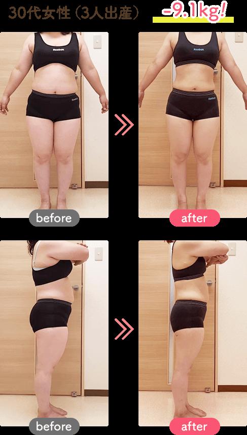 30代女性(3人出産)-9.1kg!